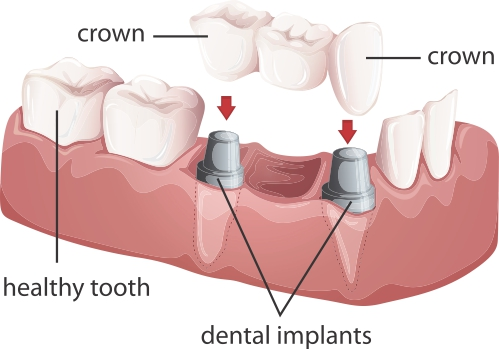 Dentistry Bridge