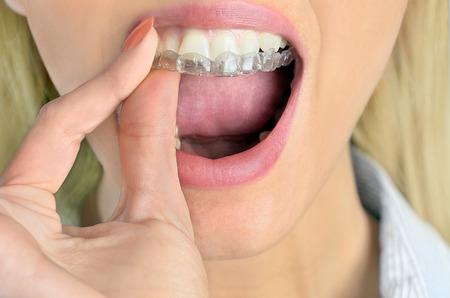 Mouthguard Teeth
