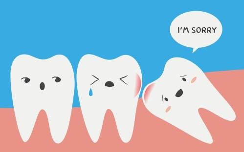 Wisdom teeth | Stafford Dental Centre - Timaru